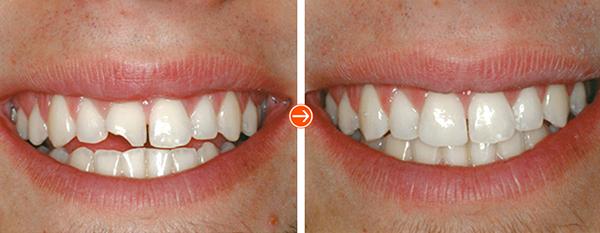 Trám răng duy trì được bao lâu thì nên đi trám lại?