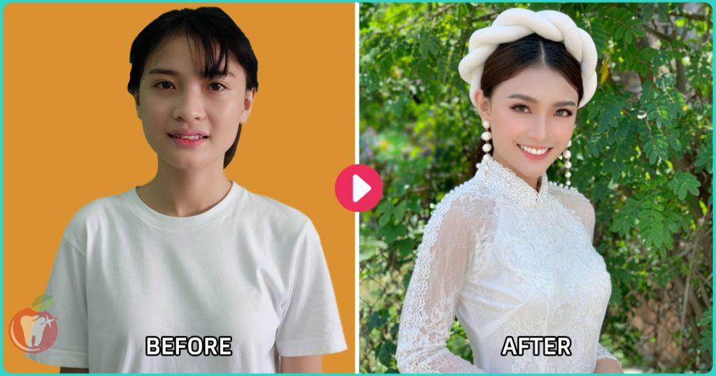 Nha Khoa LINH XUÂN - Trước và sau khi niềng răng