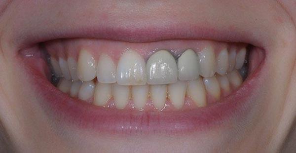 Bọc răng sứ kim loại bị đen viền nướu
