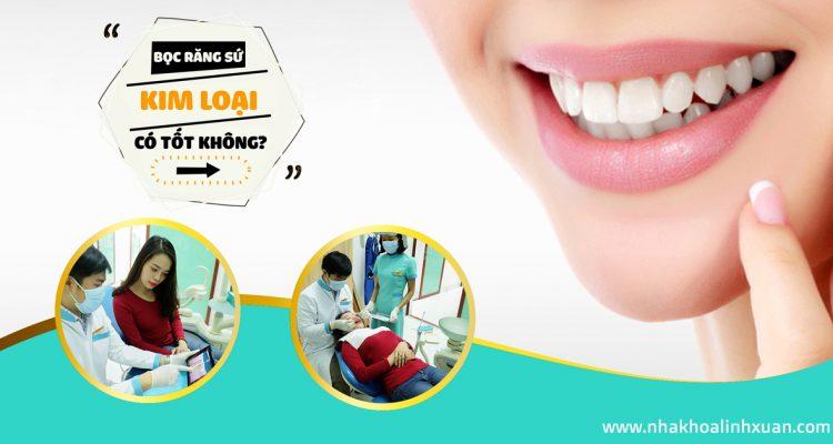 Bọc răng sứ kim loại Nha Khoa LINH XUÂN