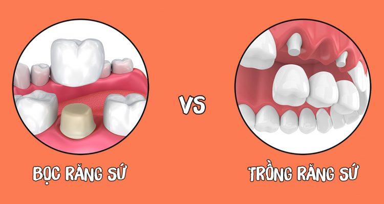 Bọc răng sứ và trồng răng sứ