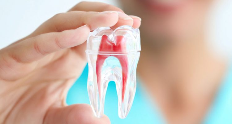 Điều trị tủy răng ở Nha Khoa LINH XUÂN