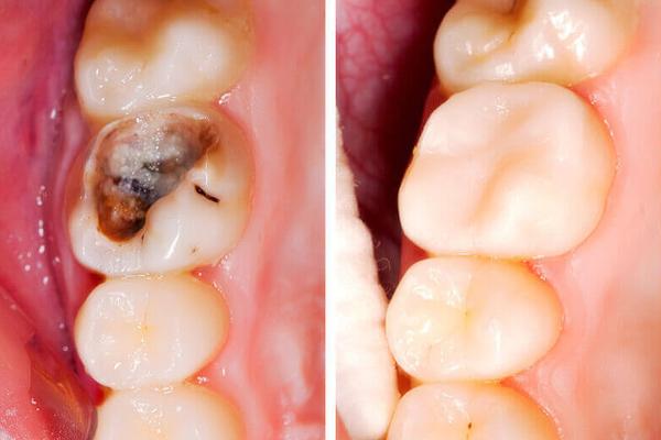 Trám răng sâu đục tủy tại Nha Khoa LINH XUÂN
