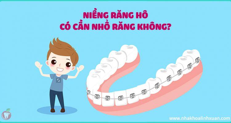 Niềng răng hô có cần nhổ răng không