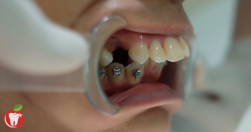 Niềng răng hô Nha Khoa LINH XUÂN