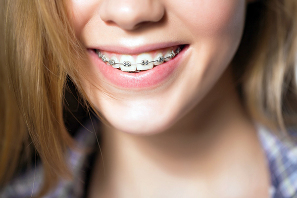 Hô hàm nhẹ có niềng răng được không?