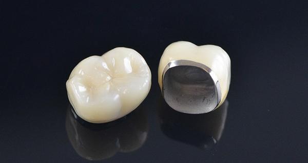 Nha Khoa Linh Xuân - Răng sứ kim loại