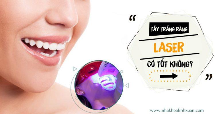 Tẩy trắng răng Laser có tốt không