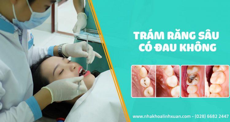 Trám răng sâu có đau không