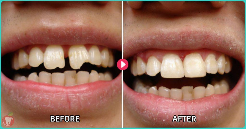 Before-After-Trám-Răng-Thưa