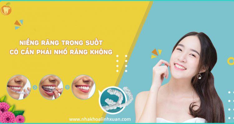 Niềng răng trong suốt có cần nhổ răng không