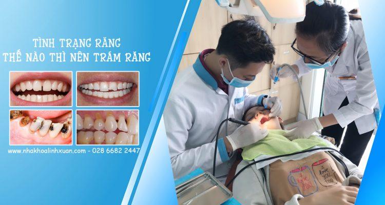 Răng như thế nào thì trám răng