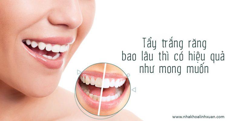 Tẩy trắng răng bao lâu thì có hiệu quả như mong muốn