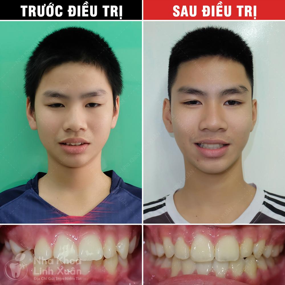 Kết quả niềng răng - Đức Minh