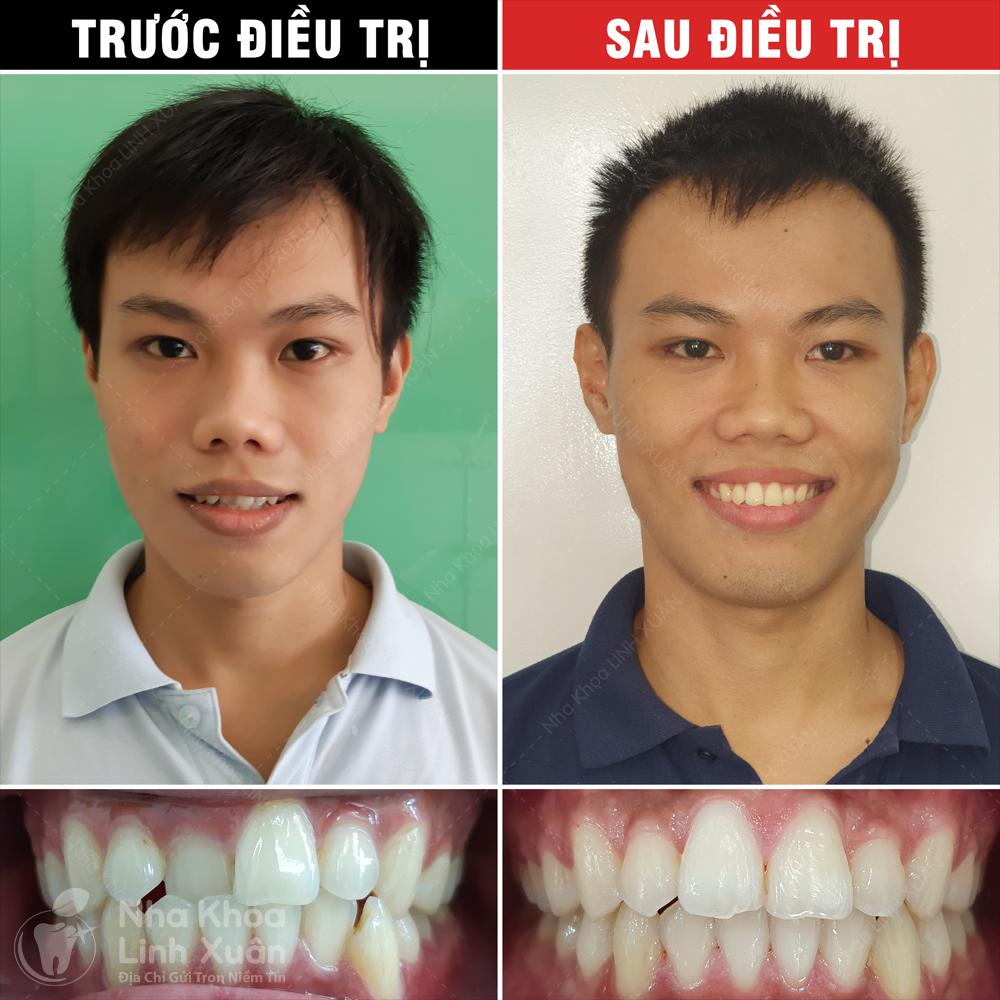 Kết quả niềng răng - Anh Tú