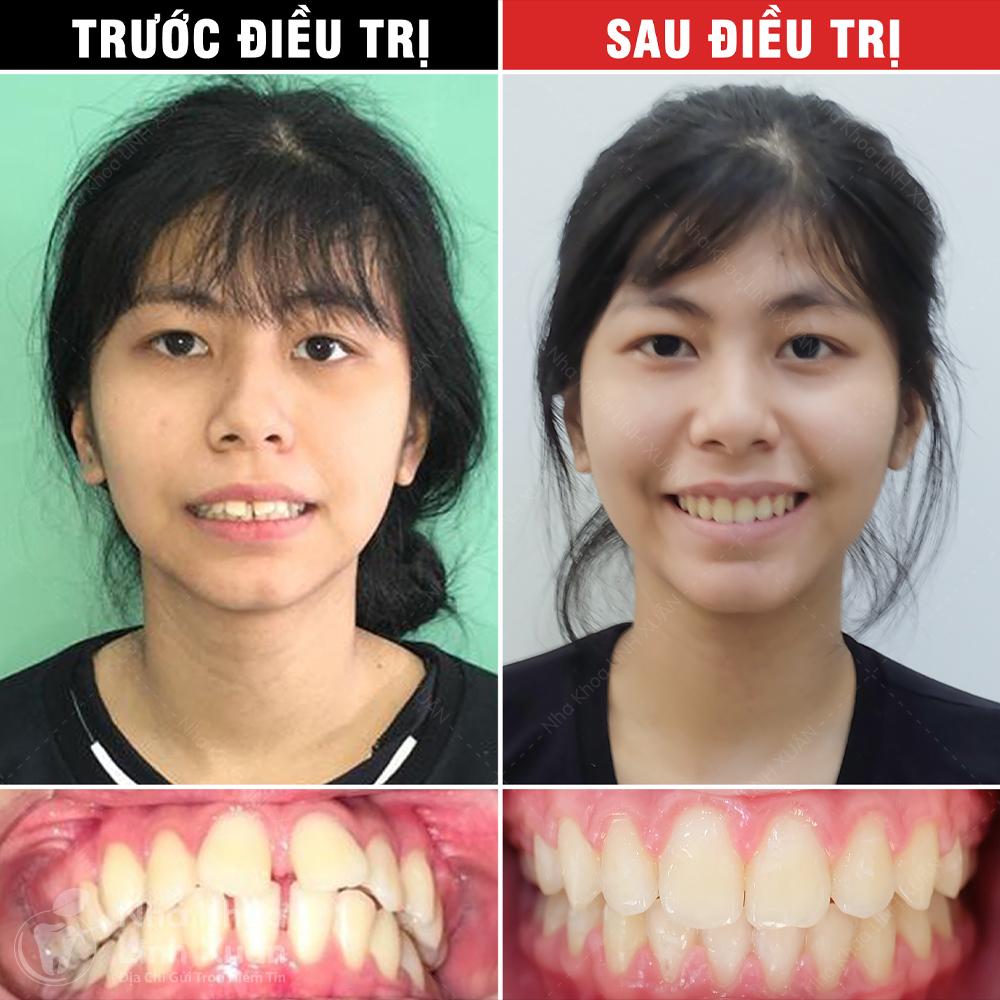 Kết quả niềng răng - Cát Vy