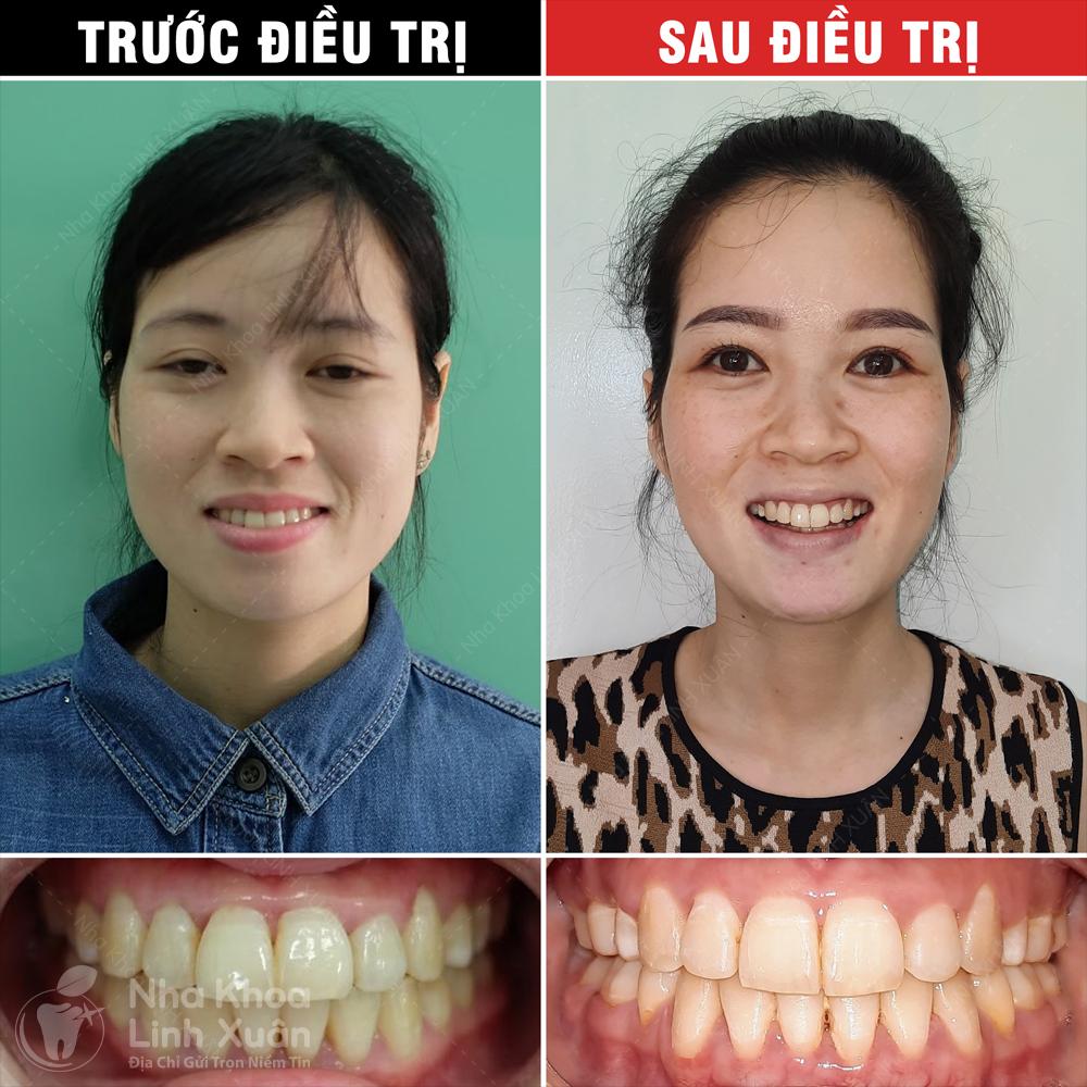 Kết quả niềng răng - Lê Thị Bình