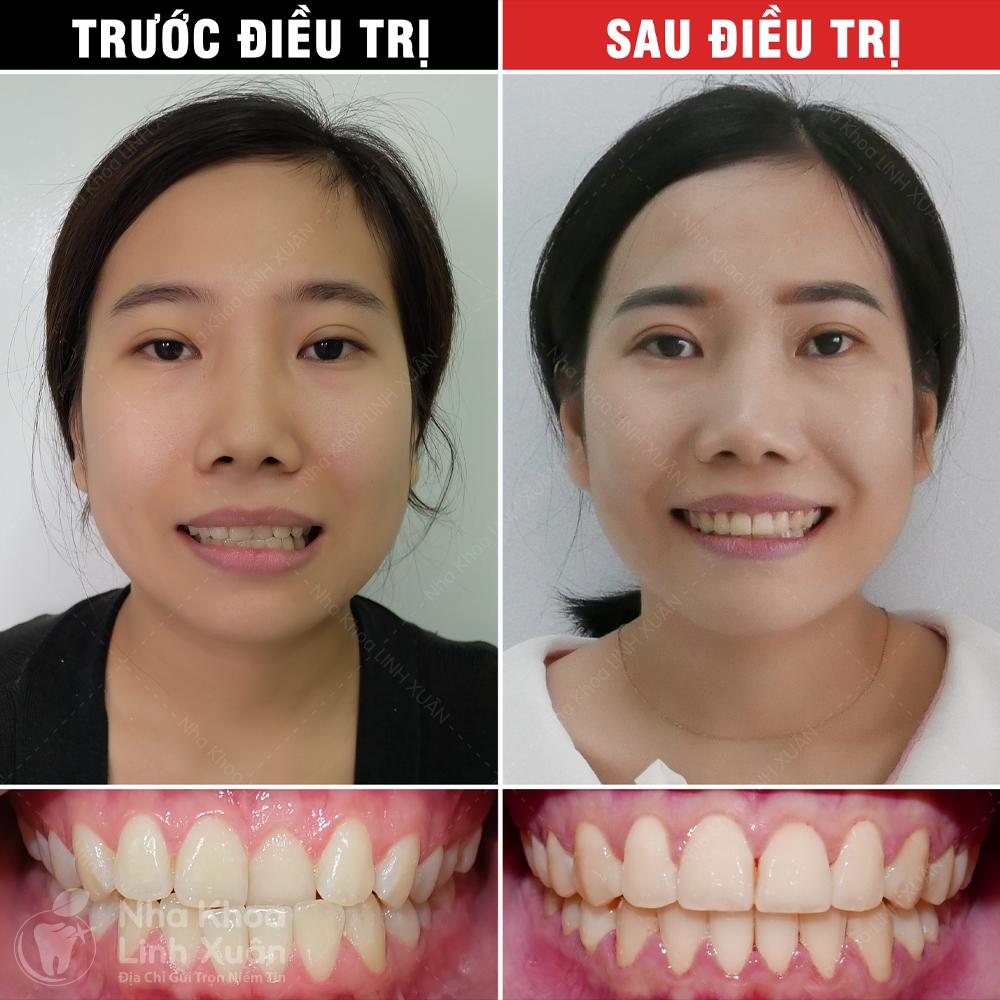 Kết quả niềng răng - Mộng Duyên