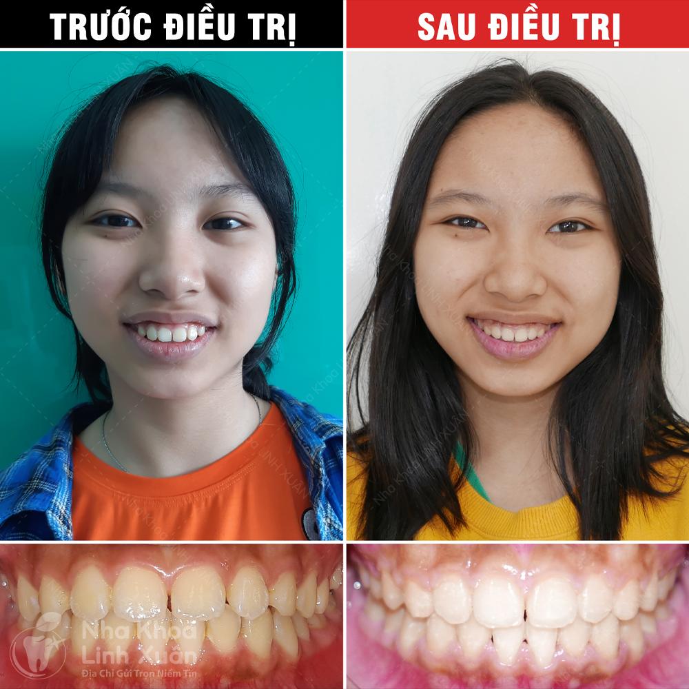 Kết quả niềng răng - Ngọc Khánh