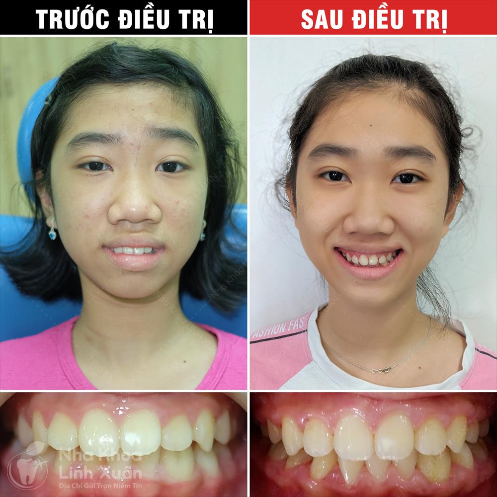 Kết quả niềng răng - Ngọc Mai