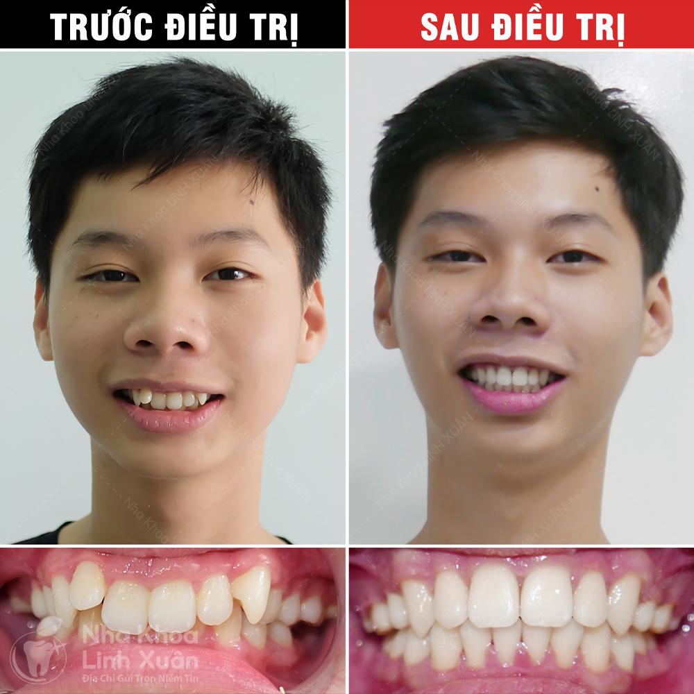 Kết quả niềng răng - Phạm Phú Thọ