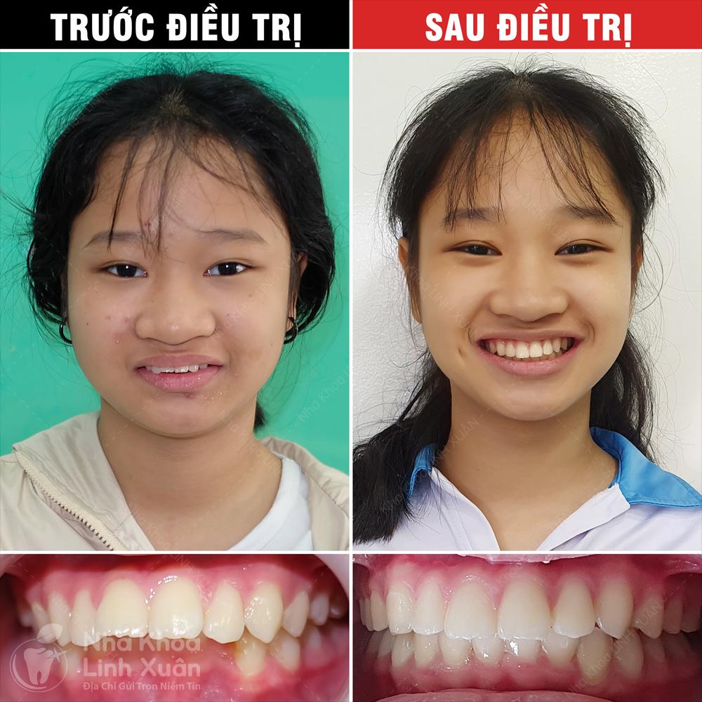 Kết quả niềng răng - Phúc An
