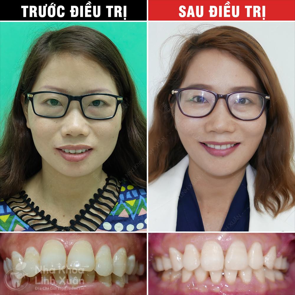 Kết quả niềng răng - Sơn Ca