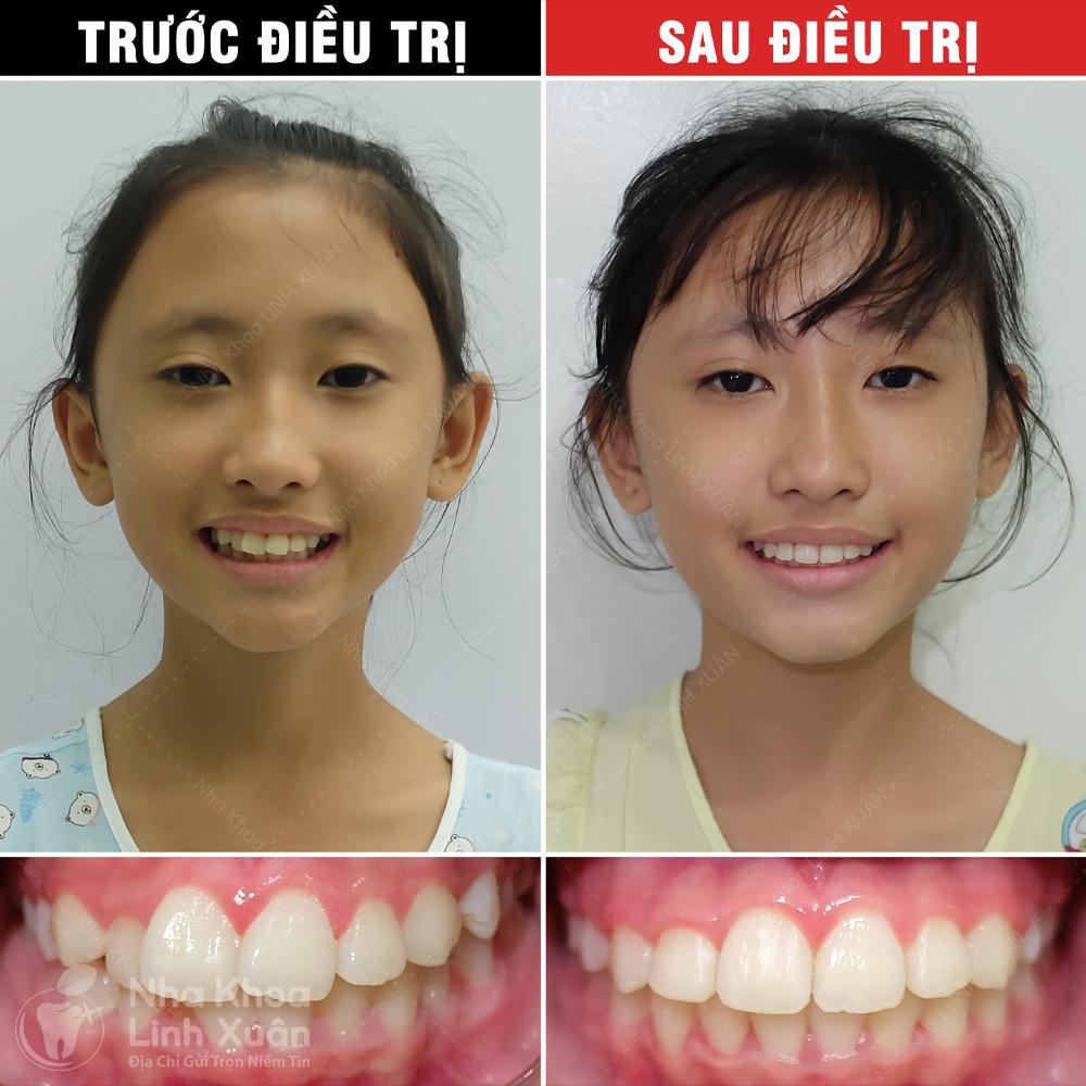 Kết quả niềng răng - Trần Thị Thảo