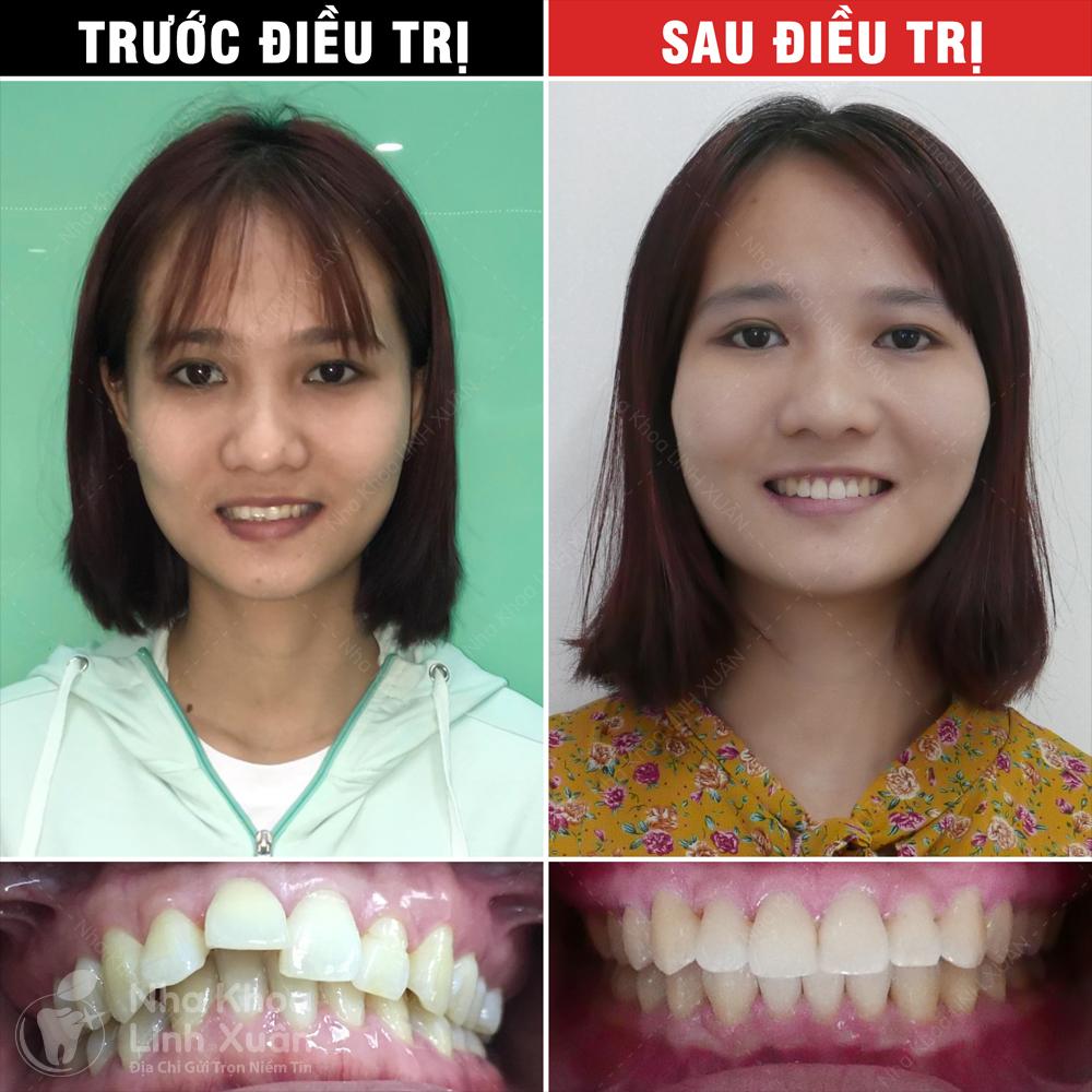 Kết quả niềng răng - Lê Thị Trang