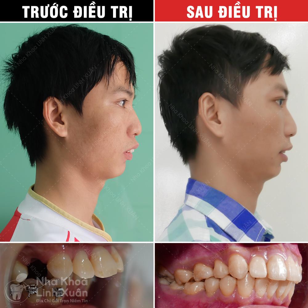 Kết quả niềng răng - Xuân Đại