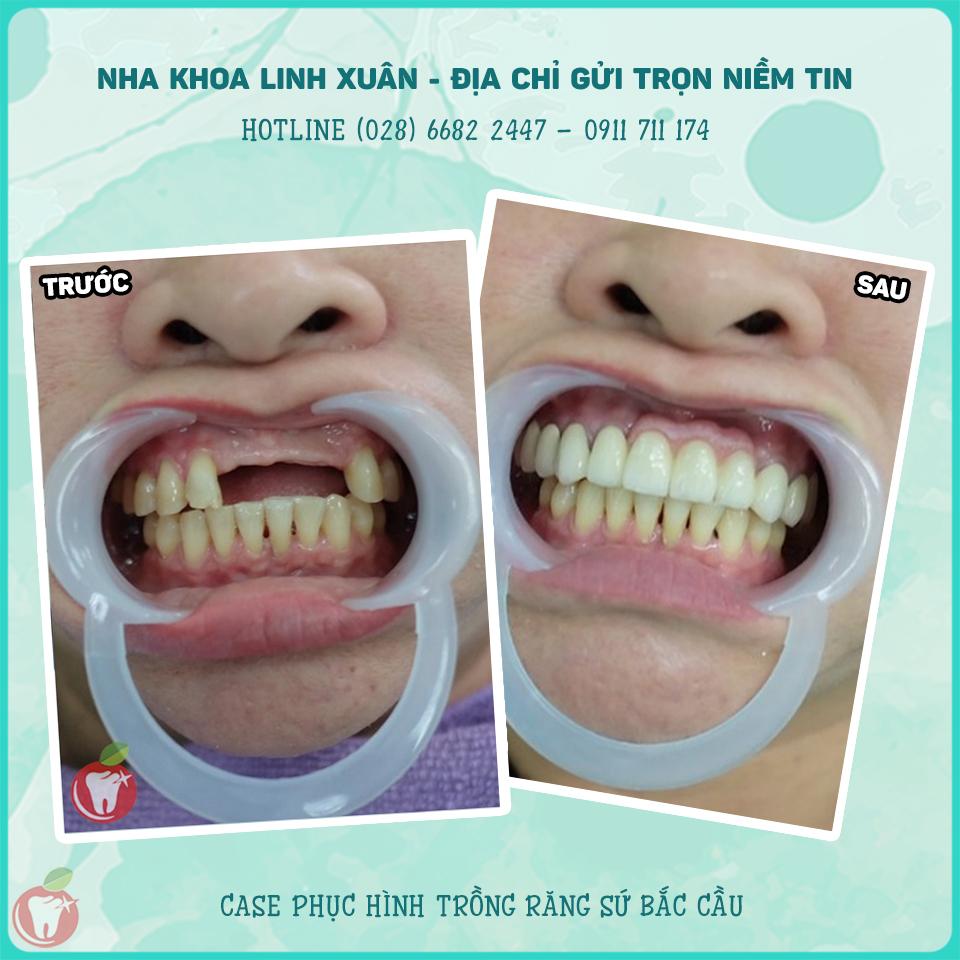 Case trồng răng sứ bắc cầu tại Nha Khoa LINH XUÂN