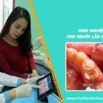 Kinh nghiệm điều trị tủy răng