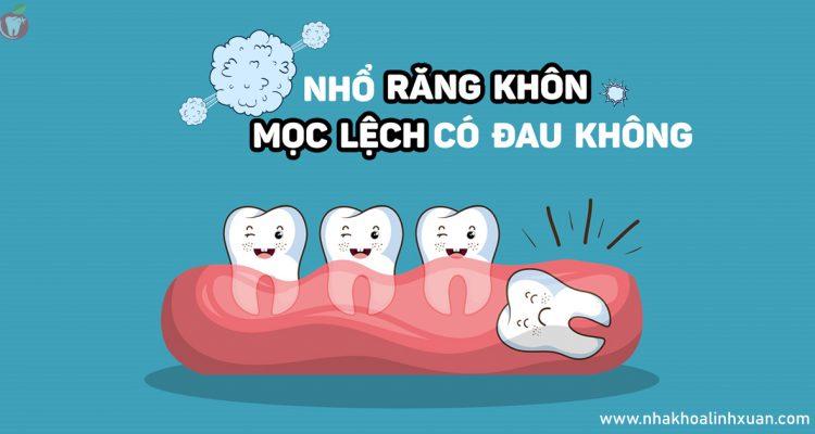 Nhổ răng khôn mọc lệch có đau không