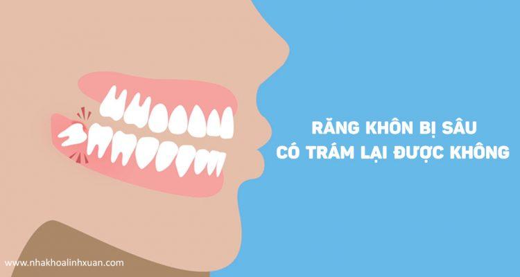 Răng khôn bị sâu có trám được không hay buộc phải nhổ