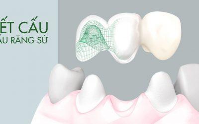 Kết cấu cầu răng sứ