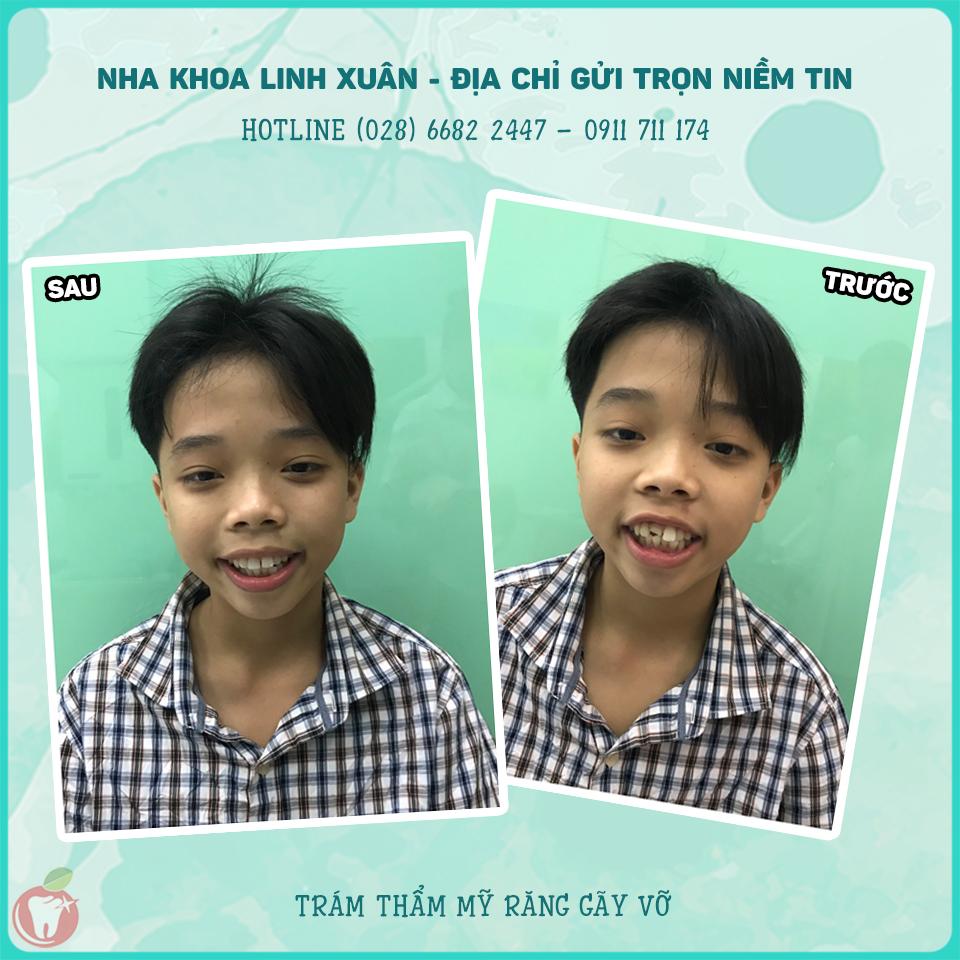 Nha Khoa LINH XUÂN - Trám răng thẩm mỹ