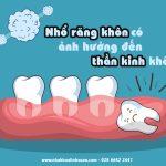 Nhổ răng khôn có ảnh hưởng thần kinh không