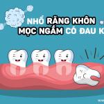 Nhổ răng khôn mọc ngầm đau không