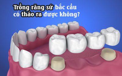 Trồng răng sứ bắc cầu có tháo ra được không