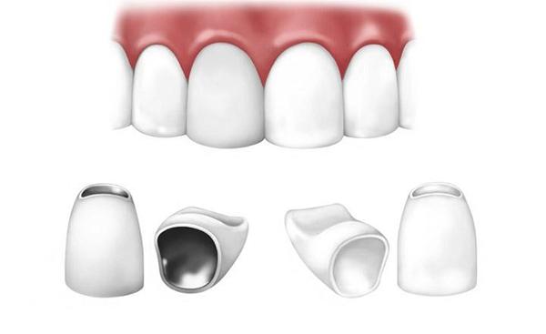 Răng sứ kim loại và toàn sứ