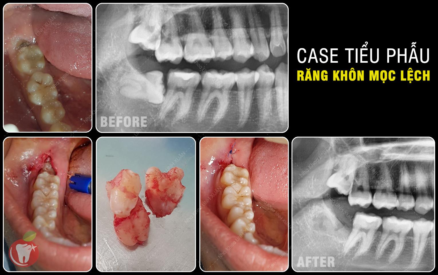 Tiểu phẫu nhổ răng khôn