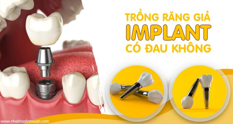 Trồng răng giả Implant có đau không