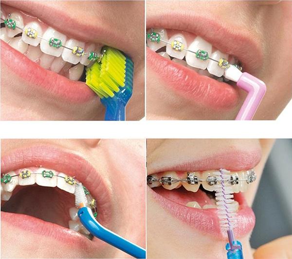 Bộ bàn chải cho người niềng răng