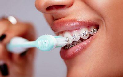 Niềng răng dùng bàn chải