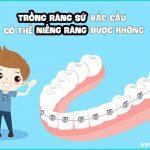 Trồng răng sứ bắc cầu có niềng được không