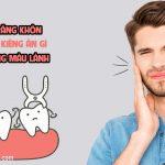 Nhổ răng khôn nên ăn gì mau lành vết thương