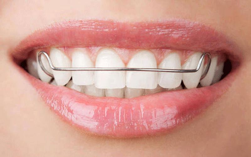 Đeo hàm duy trì sau khi niềng răng