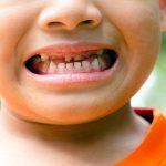 Sâu răng sữa