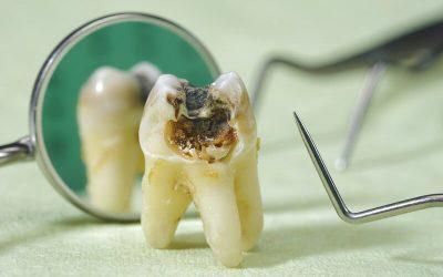 Tác hại của sâu răng