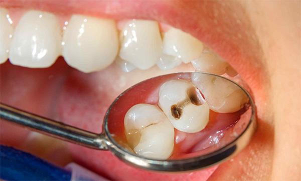 Phát hiện sâu răng